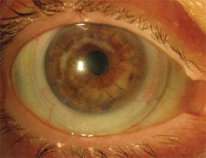 Lentille sclérale sur oeil greffé.